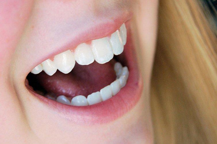 """""""Min tandläkarskräck känns 'nästan' som bortblåst"""""""